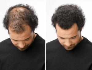 Hair Intense - lékárna - heureka - kde koupit - prodejna