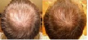 Hairstim - prodej - cena