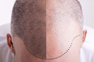 Hairstim - recenze - výsledky - forum - diskuze