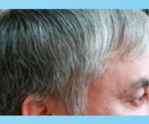 Anti-Grey Treatment - diskuze - výsledky - forum - recenze